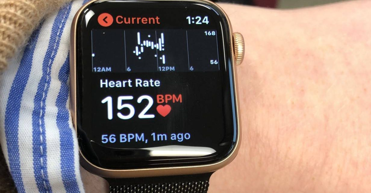 Apple Watch Saves Life of Woman Who Didn't Even Notice She Had a Heart Attack