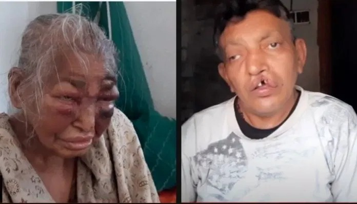 The mother of BJP worker and the BJP worker