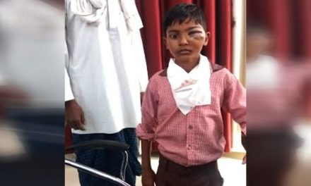 UP teacher thrashes Class-2 student for not cleaning the floor properly. The boy may lose his eye.